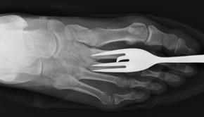 bláznivé rentgeny